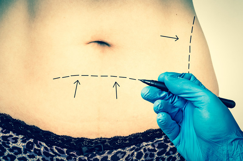 a tummy tuck in los angeles