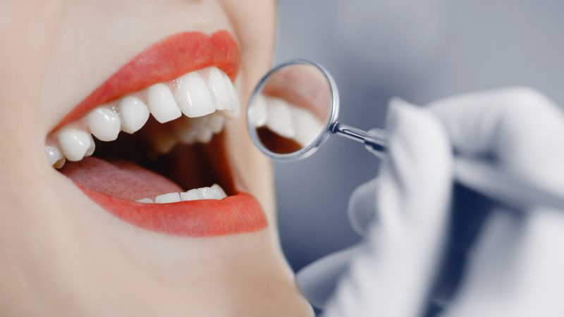 how to fix gummy smile in Beverly Hills