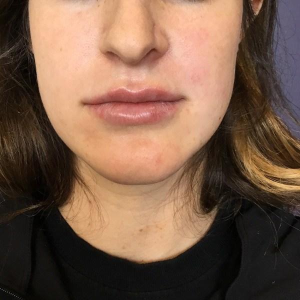 Botox injections in Studio City